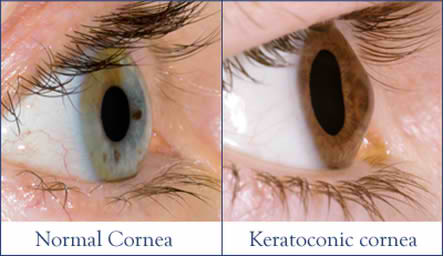 Photo shows a Normal cornea and a Keratoconic cornea